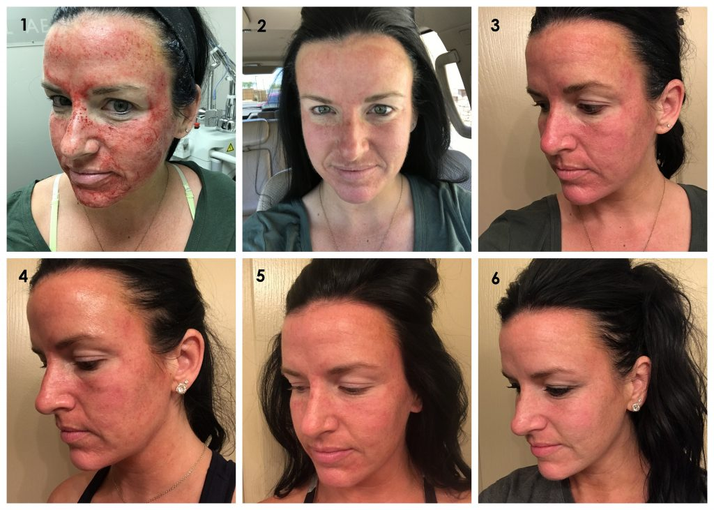 Skin Journey | Microneedling | Teacherfashionista